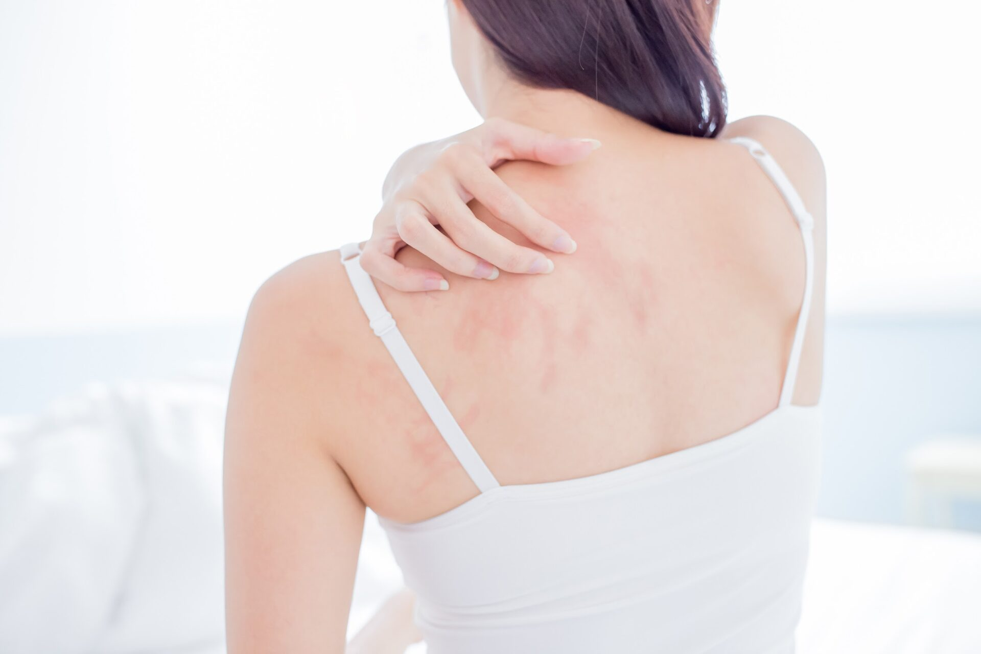 A woman with skin rashes on her back.